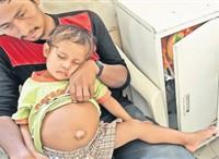 Cazul care a şocat lumea. La 3 ani,un băieţel poartă în pântece un copil mort