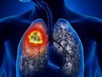 4 simptome ascunse ale cancerului de plămâni. Lumea nu le acordă importanță