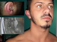 Jurnalist din Satu Mare, bătut cu sălbăticie (FOTO&VIDEO)
