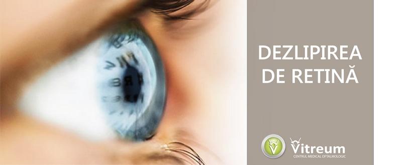 dezlipire de retina2