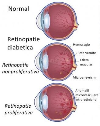 vitreum retinopatie