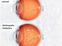 Dr. Levai Lehar: Diabetul afectează vederea