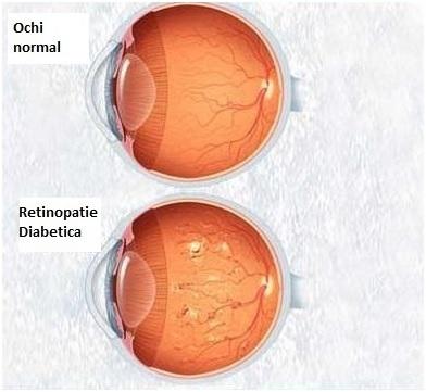 vitreum retinopatie2