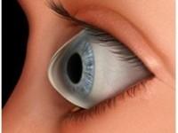 Clinica Vitreum: Ce înseamnă KERATOCONUSUL?